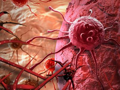 Tế bào ung thư luôn tiềm tàng trong cơ thể mỗi chúng ta nhưng nó được kiểm soát bởi một hệ thống miễn dịch khỏe mạnh. Để ngăn chặn, hãy tăng cường hệ miễn dịch bằng 3 lời khuyên.